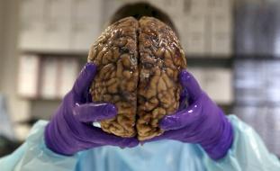 روسي يُجمد دماغ أمه بعد موتها لسبب غريب!