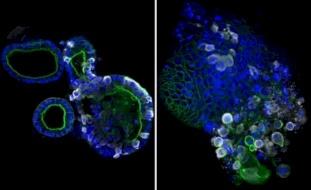 علماء بريطانيون يلتقطون أوضح صورة لفيروس كورونا بالأمعاء