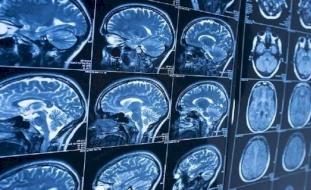 لماذا تشكل السكتة الدماغية خطرا أكبر على السود؟