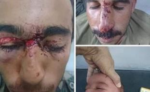 صور دامية.. سوريون ينقذون رضيعاً من أنياب ذئب!