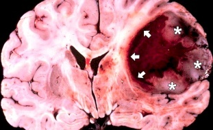 متى يكون الصداع مؤشراً على ورم في الدماغ؟