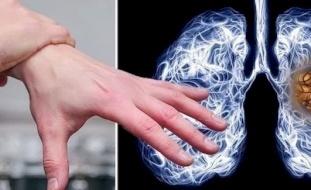 تضخم الأصابع .. مؤشر على الإصابة بسرطان الرئة