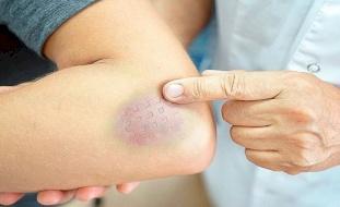 لغز الكدمات الزرقاء في الجسم.. ما سببها؟