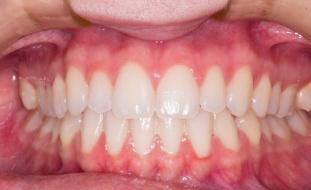 اضطراب في النوم قد يكون السبب في المعاناة من صرير الأسنان