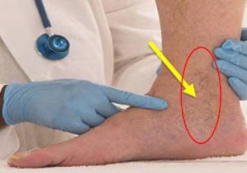 فيديو| هل لاحظت هذه العلامات الدوالي على ساقك؟
