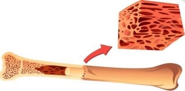 Image result for التبرع بنخاع العظم