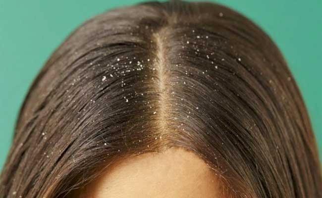 هذه الأسباب تجعل شعركِ دهنياً