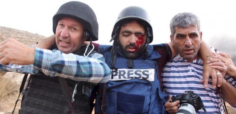 نقابة الصحفيين تستنكر اعتداء الاحتلال على المصور عمارنة