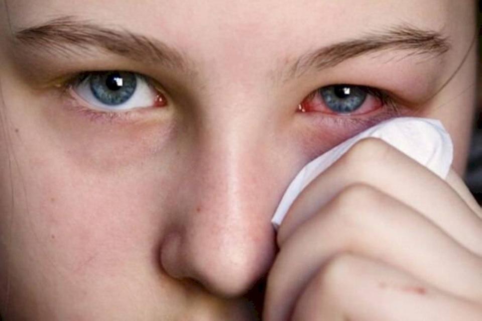 باحثون يكشفون 3 أعراض جديدة ومبكرة جداً لعدوى كورونا
