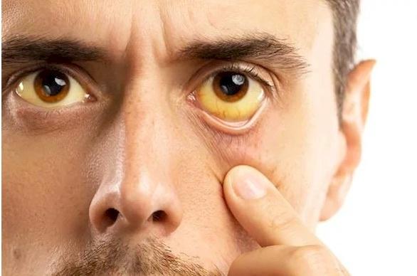 علامتان تحذيريتان في الوجه تدلان على نقص فيتامين B12
