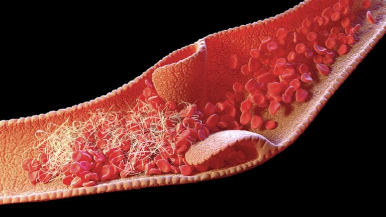 """دراسة تحدد سبب تشكل جلطات الدم لدى المصابين بـ""""كوفيد-19"""" الشديد"""