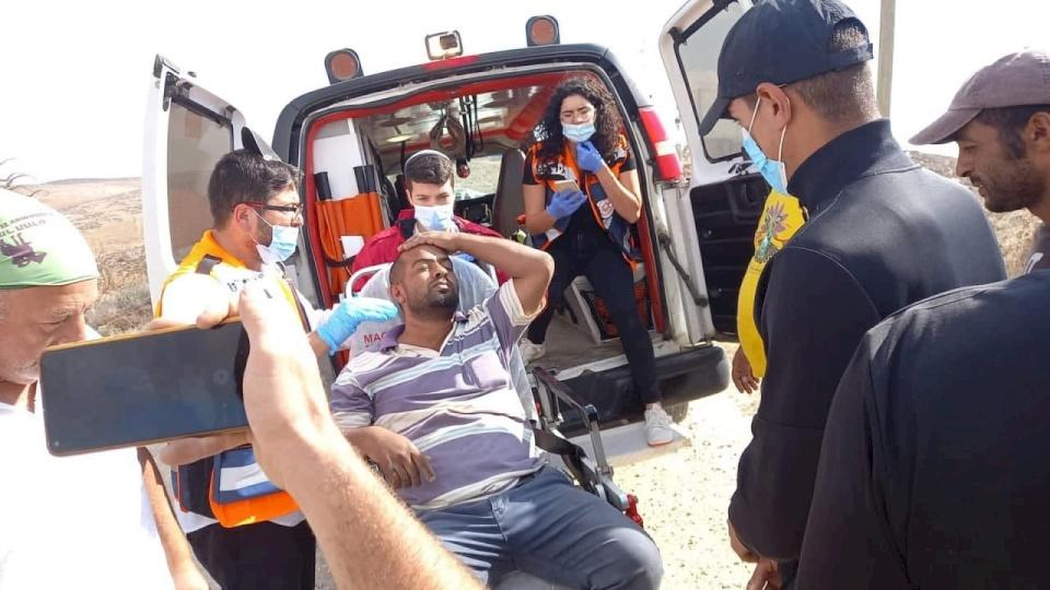 إصابة راعي أغنام بجروح إثر اعتداء مستوطنين عليه بمسافر يطا